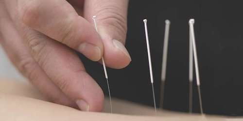 The Acupuncture Courses